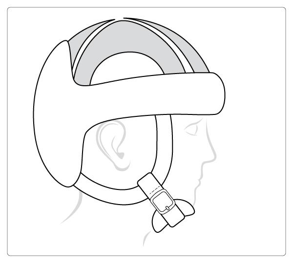 Starlight® Protect-Evo met gesloten bovenkant