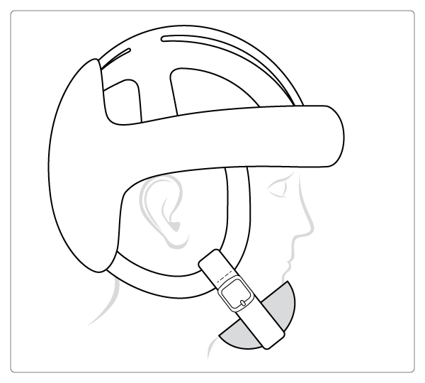 Starlight® Protect Plus-Evo kinbescherming